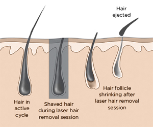 laser hair removal follicle growth cycle